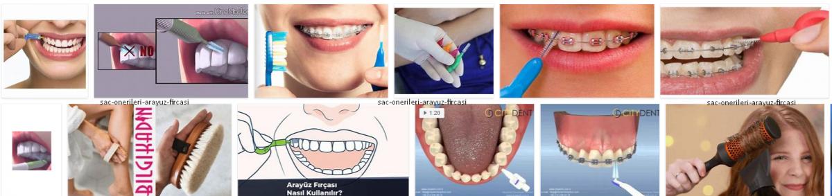 Arayüz Fırçası,Diş Arayüz Fırçası Kullanıımı *2021 Sağlık Önerileri