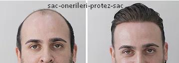 Protez Saç Fiyatları, Protez Saç Nedir * 2021