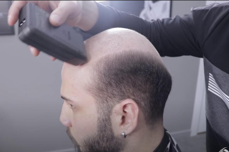 Protez Saç Fiyatları, Protez Saç Nedir * 2021 Saç Önerileri